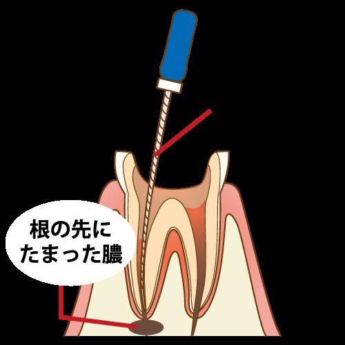 虫歯を放置するリスク
