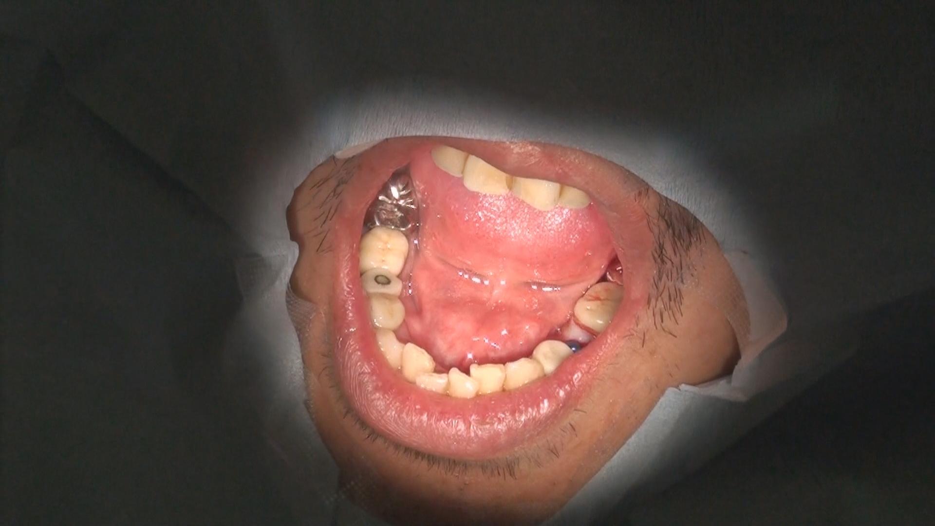 再生歯科治療